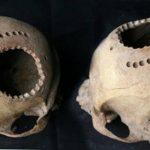 Οι αρχαίοι Περουβιανοί πραγματοποιούσαν χειρουργικές επεμβάσεις στον εγκέφαλο πριν από 1.000 χρόνια!